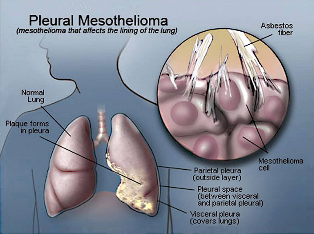 Diagram of the Pleural Mesotheliomia